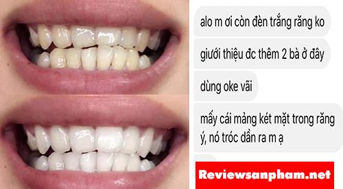 Máy làm trắng răng White Glo có tốt không?