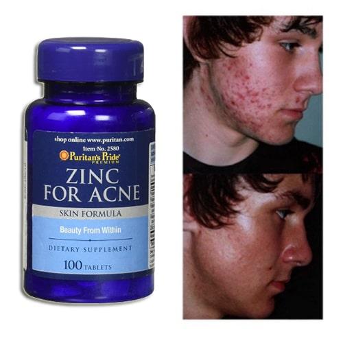 Viên kẽm trị mụn Zinc For Acne có tốt không?-3